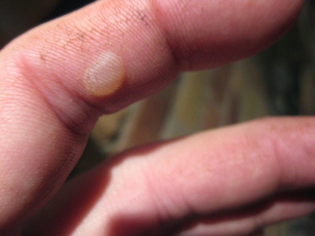 What causes bumps on my fingers? - Skin Disorders - Sharecare